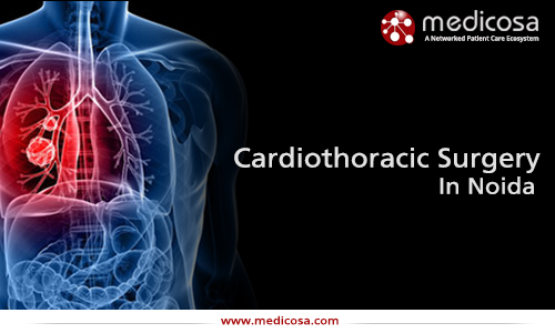 cardiothoracicsurgery