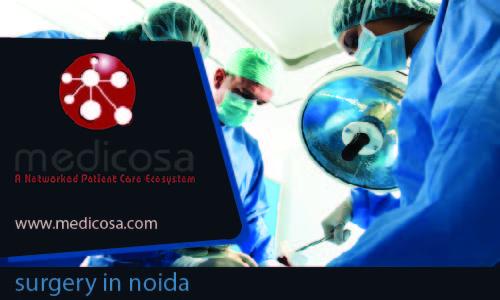 surgery in noida