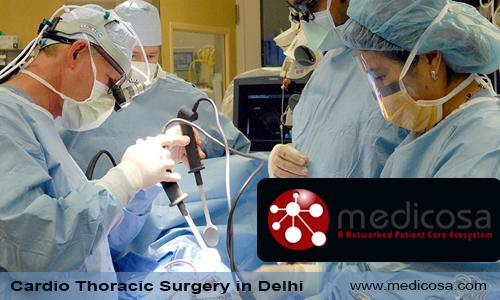 Cardio Thoracic Surgery in Delhi